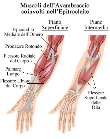 https://www.my-personaltrainer.it/imgs/2019/01/21/epitrocleite-muscoli-dell-avambraccio-orig.jpeg