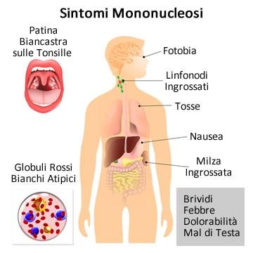 https://www.my-personaltrainer.it/imgs/2019/01/25/mononucleosi-sintomi-orig.jpeg