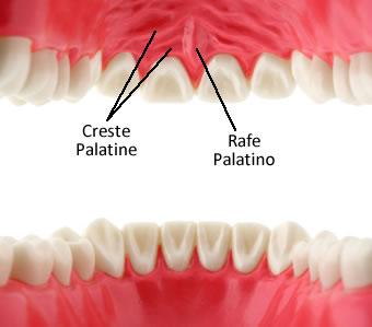 https://www.my-personaltrainer.it/imgs/2019/02/19/palato-duro-creste-palatine-e-rafe-palatino-orig.jpeg