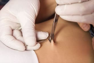 https://www.my-personaltrainer.it/imgs/2019/02/19/piercing-ombelico-come-si-esegue-orig.jpeg