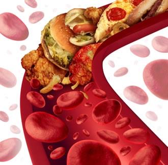 https://www.my-personaltrainer.it/imgs/2019/02/28/dieta-e-colesterolo-orig.jpeg