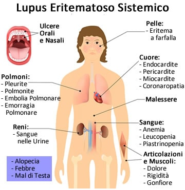 https://www.my-personaltrainer.it/imgs/2019/04/04/lupus-eritematoso-sistemico-sintomi-2-orig.jpeg