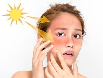 https://www.my-personaltrainer.it/imgs/2019/05/08/luce-solare-effetti-luce-solare-2-orig.jpeg
