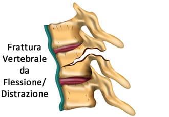 https://www.my-personaltrainer.it/imgs/2019/05/13/frattura-vertebrale-tipi-2-orig.jpeg