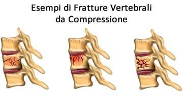 https://www.my-personaltrainer.it/imgs/2019/05/13/frattura-vertebrale-tipi-orig.jpeg