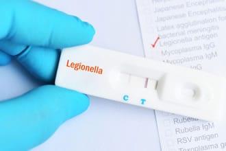 https://www.my-personaltrainer.it/imgs/2019/05/23/legionellosi-diagnosi-orig.jpeg