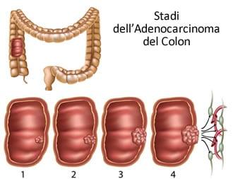https://www.my-personaltrainer.it/imgs/2019/05/27/adenocarcinoma-del-colon-diagnosi-stadi-orig.jpeg