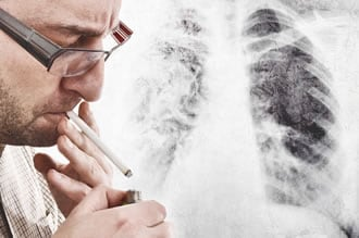 https://www.my-personaltrainer.it/imgs/2019/06/10/cosa-contiene-sigaretta-sostanze-cancerogene-2-orig.jpeg