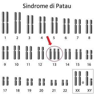 https://www.my-personaltrainer.it/imgs/2019/06/13/sindrome-di-patau-cause-orig.jpeg