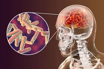 https://www.my-personaltrainer.it/imgs/2019/06/29/meningite-batterica-orig.jpeg