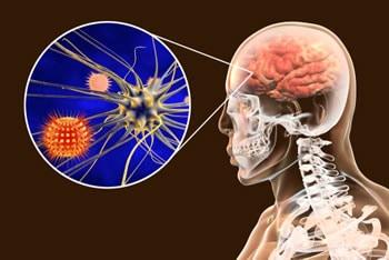 https://www.my-personaltrainer.it/imgs/2019/06/29/meningite-virale-orig.jpeg