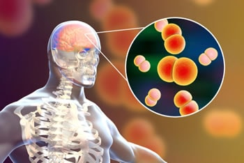 https://www.my-personaltrainer.it/imgs/2019/07/02/meningite-meningococcica-orig.jpeg