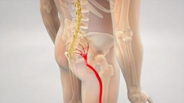https://www.my-personaltrainer.it/imgs/2019/07/20/nervo-sciatico-anatomia-orig.jpeg