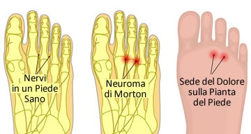 https://www.my-personaltrainer.it/imgs/2019/07/23/farmaci-e-cura-del-neuroma-di-morton-orig.jpeg