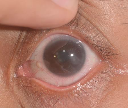 herpes labiale e oculare