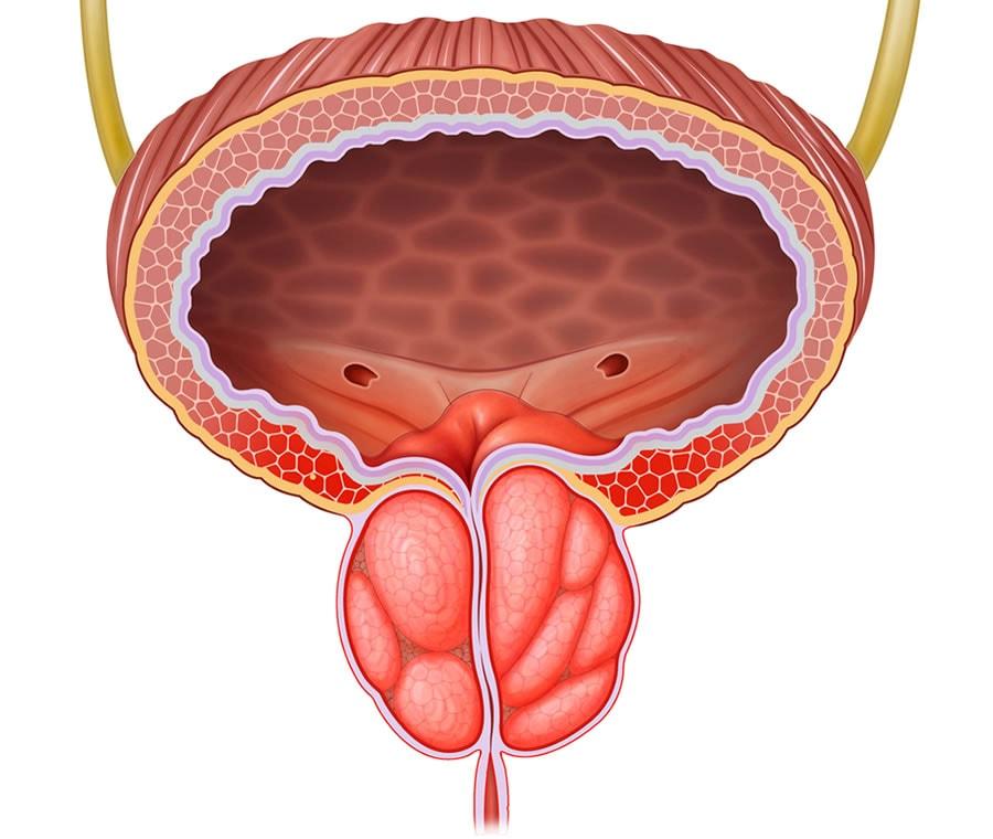 prostata ingrossata intervento
