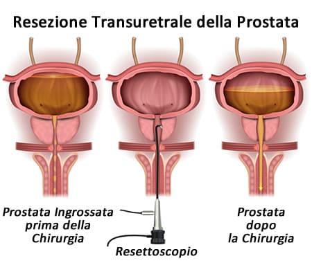 Mycoplasma ureablasm és prostatitis milyen prosztatitis Milyen antibiotikumok szükséges