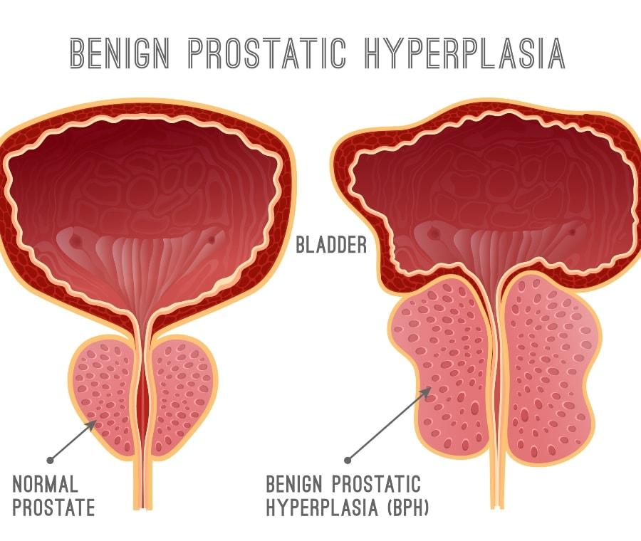 vannak fájdalmak a csípő dysplasiaban az ízületek fájnak hogy milyen kenőcsök segítik