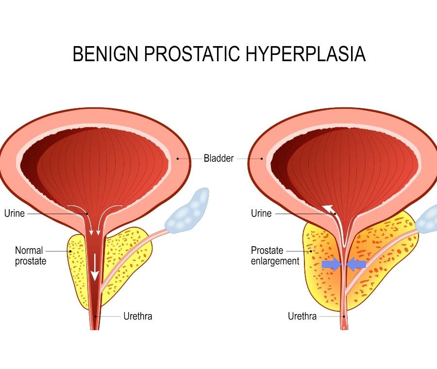 dimensioni prostata 70 anni Bel a prostatitisből