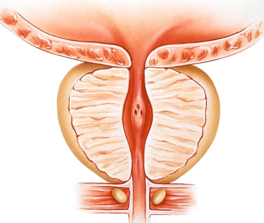 prostata piccola e psa alto)