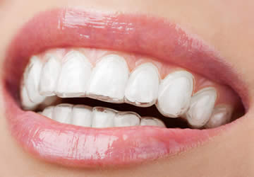 Rimedi Denti Gialli