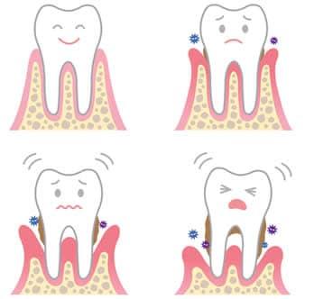 tasche parodontali
