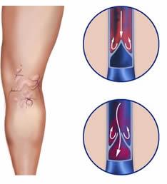 Complicazioni dopo operazione su vene di gambe