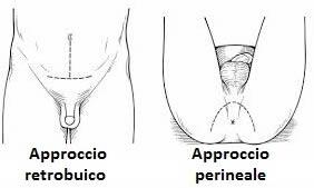 Profіlaktika lіkuvannya prostatite - Propoli clistere da prostatite