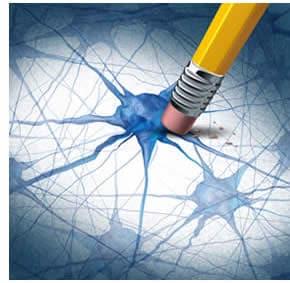 Demenze neuroni