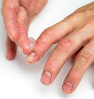 Là non passa la dermatite atopic ad adulti