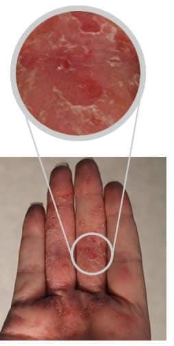 Trattamento di laser di unghie di battute di entrata