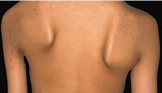 Distrofia Muscolare Fascio-Scapolo-Omerale