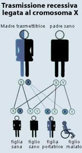 Distrofia muscolare cromosoma X