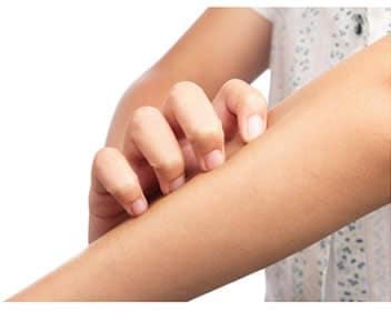 Eczema Prurito