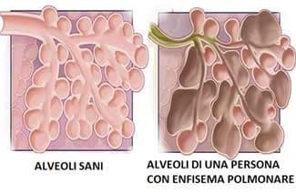 Enfisema polmonare alveoli
