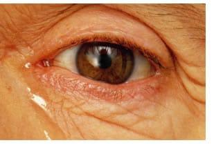 Epifora Occhi Che Lacrimano