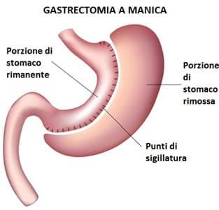Risultati immagini per gastrectomia