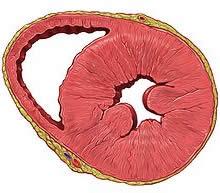 Ipertrofia ventricolare sinistra cause sintomi cure for Dolore addome sinistro alto