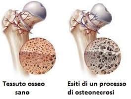 Ostonecrosi anca