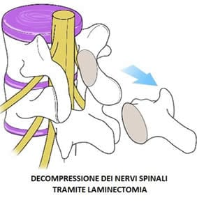 Decompressione spinale