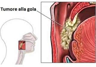 Tumore alla gola
