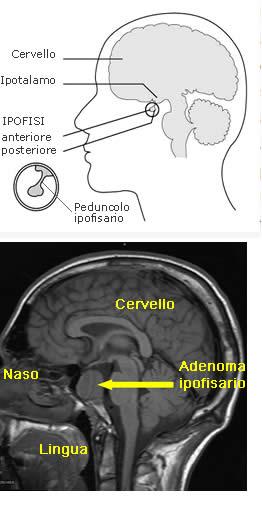 Adenoma Ipofisario