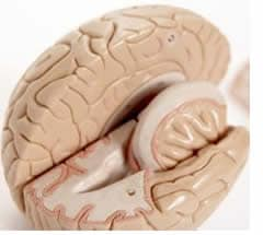 Aneurisma Cervello