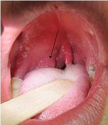 Risultati immagini per ascesso peritonsillare
