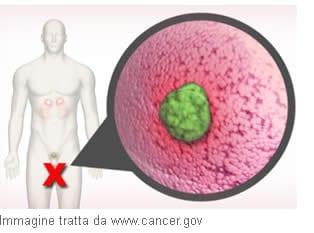 Caratterizzare il Cancro