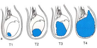 Cancro ai testicoli - stadi