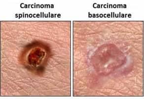 Carcinoma spinocellulare basocellulare