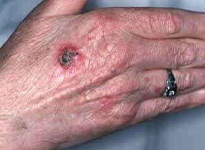 carcinoma squamocellulare bowenoide