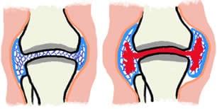 Emofilia versamento articolazioni