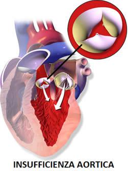 Insufficienza aortica lieve moderata